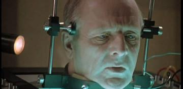 Трансплантация человеческой головы через два года